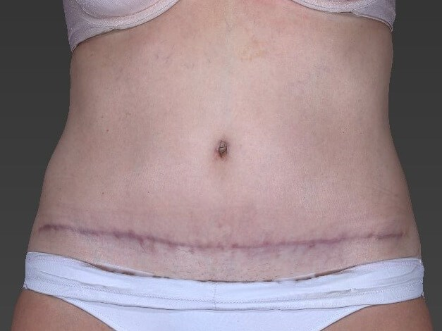 41 Year Old Female has Tummy Tuck Surgery in Providence, RI